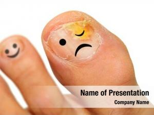 Onychomycosis fungal infection of the nail