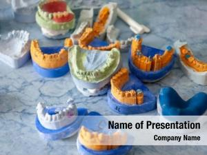Various dental molds impressions from few patients in a surgery