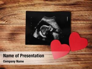 Ultrasound Powerpoint Templates Templates For Powerpoint