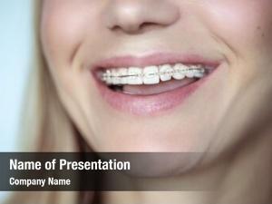 Crooked braces, treatment teeth, closeup