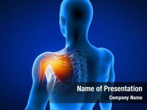 Painful rendered medical shoulder