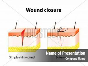 Suture PowerPoint Templates - PowerPoint Backgrounds for