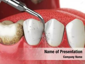 Cleaning professional teeth