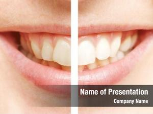 White comparison between teeth after