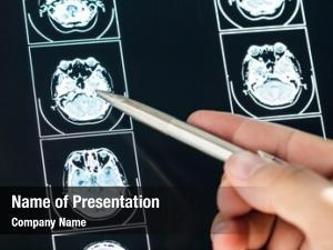 Mri closeup brain scan result