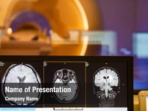 Tomograph brain