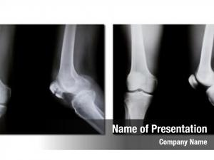 (broken collection x ray knee, normal