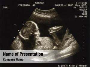 Weeks ultrasound fetus