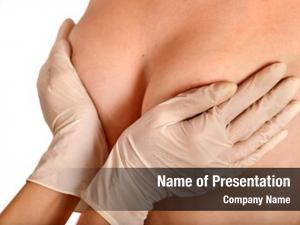 Augmentation female breast