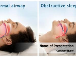 Snore problem powerpoint background