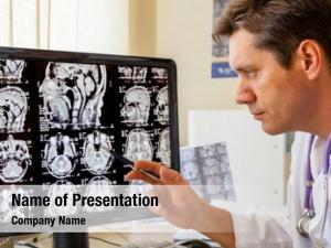Mri doctor examining scan brain