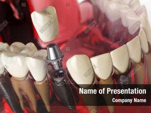 Denture Powerpoint Templates Templates For Powerpoint
