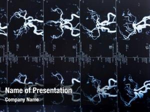 Scan, mri head blood vessels