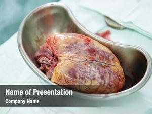 Heart used human during cardiac