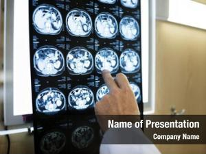 Brain ct scan powerpoint background