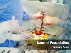 Uniform hands surgeons perform heart